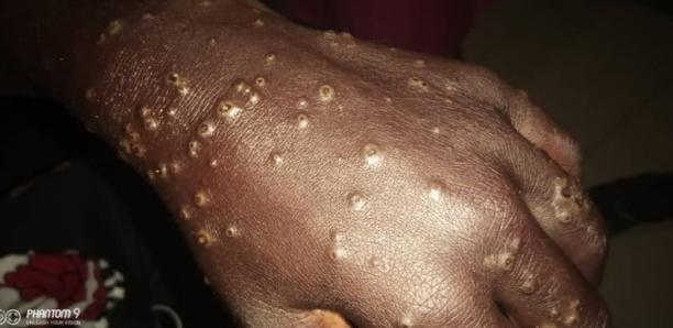 Sénégal : Les premiers résultats de l'investigation sur la maladie mystérieuse qui touche les pêcheurs révélés